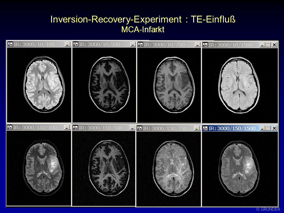 Inversion-Recovery-Experiment : TE-Einfluß
