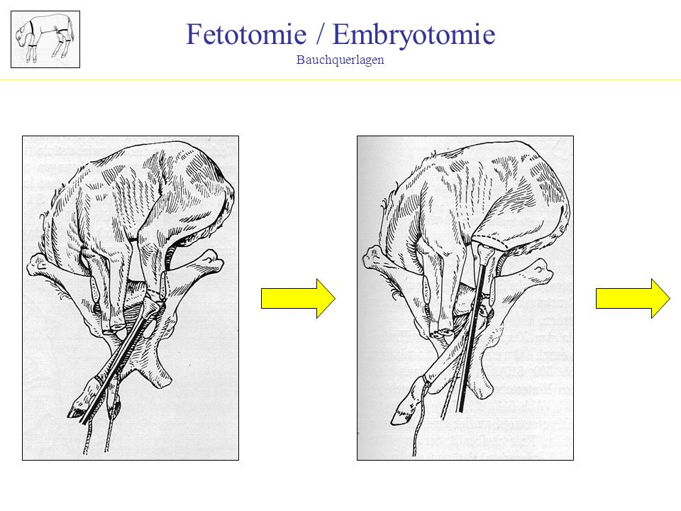 Fetotomie / Embryotomie
