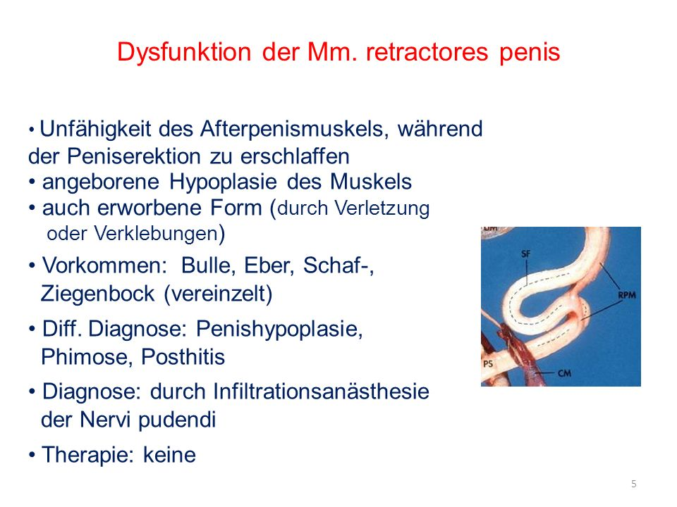 Dysfunktion der Mm. retractores penis