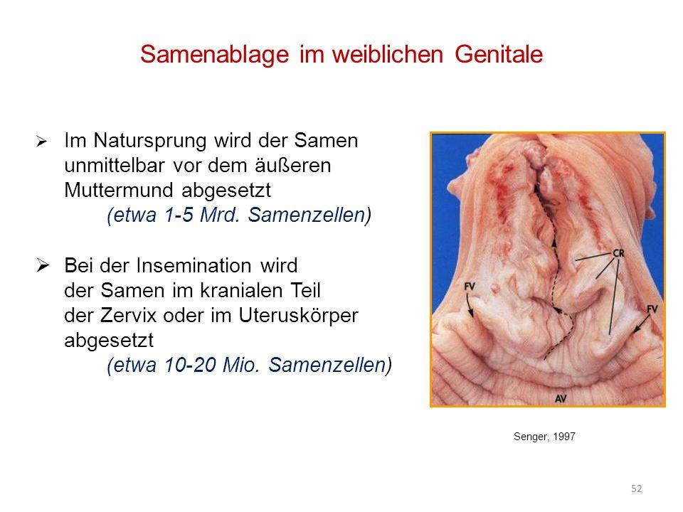 Groß Weibliche Zervix Zeitgenössisch - Anatomie Von Menschlichen ...