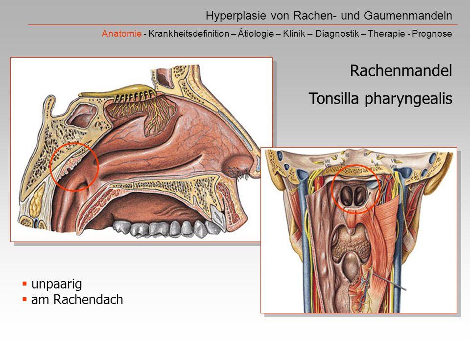 Rachen- und Gaumenmandeln - ppt video online herunterladen