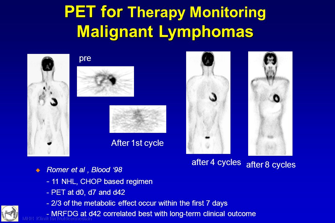 PET for Therapy Monitoring Malignant Lymphomas