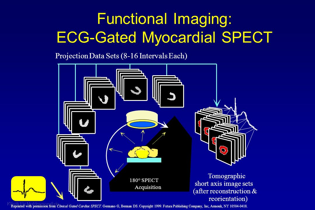 Functional Imaging: ECG-Gated Myocardial SPECT