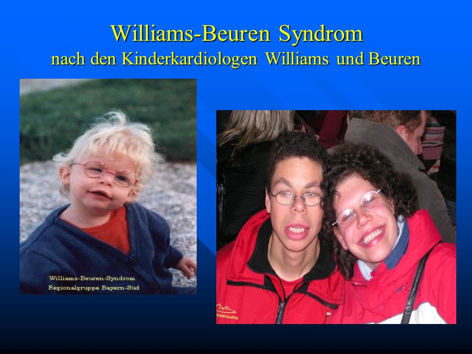 Williams-Beuren Syndrom nach den Kinderkardiologen Williams und Beuren