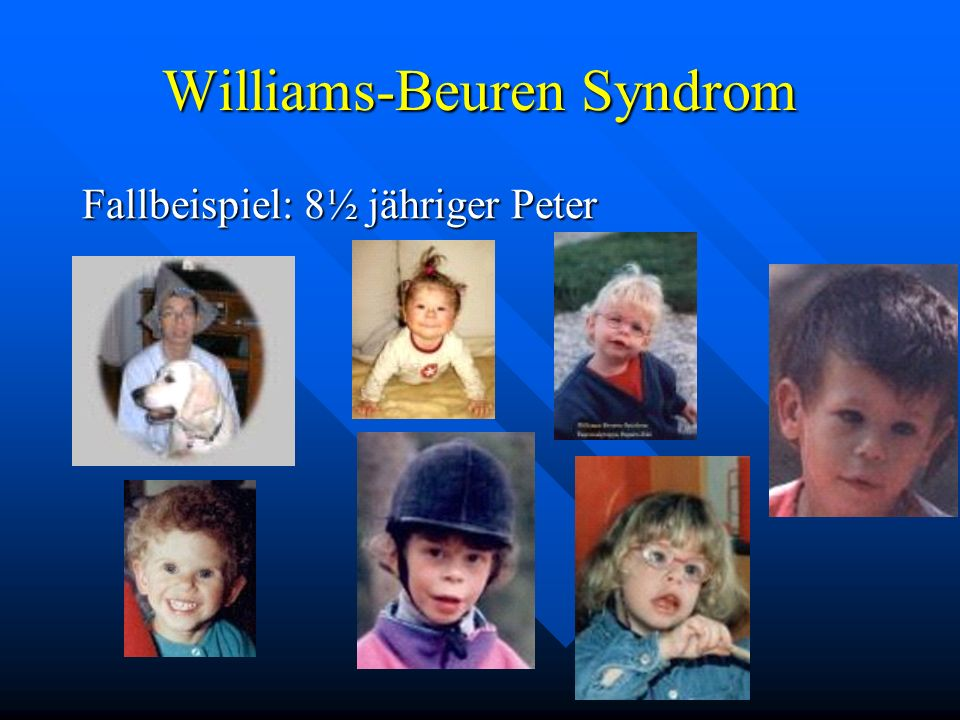 Williams-Beuren Syndrom