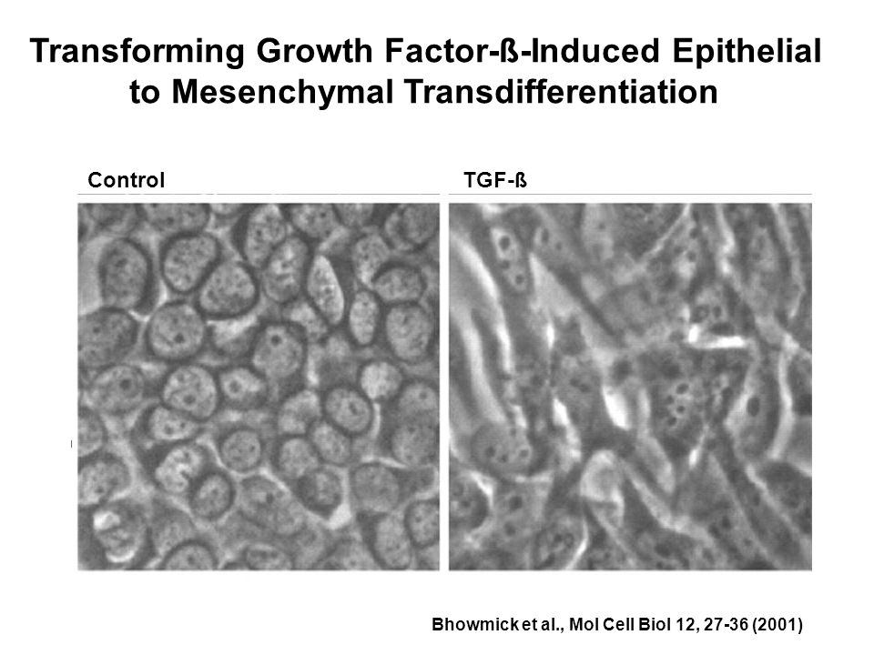 Transforming Growth Factor-ß-Induced Epithelial