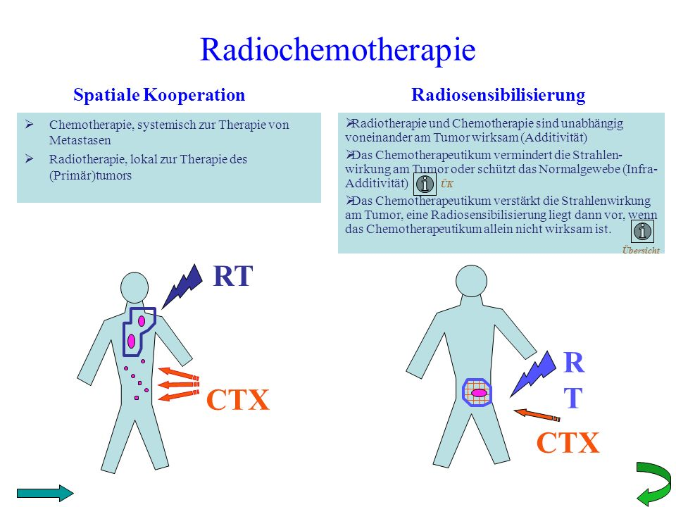 Radiochemotherapie RT RT CTX CTX