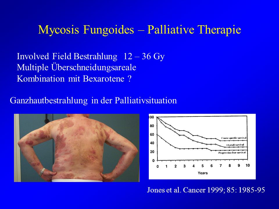 Mycosis Fungoides – Palliative Therapie