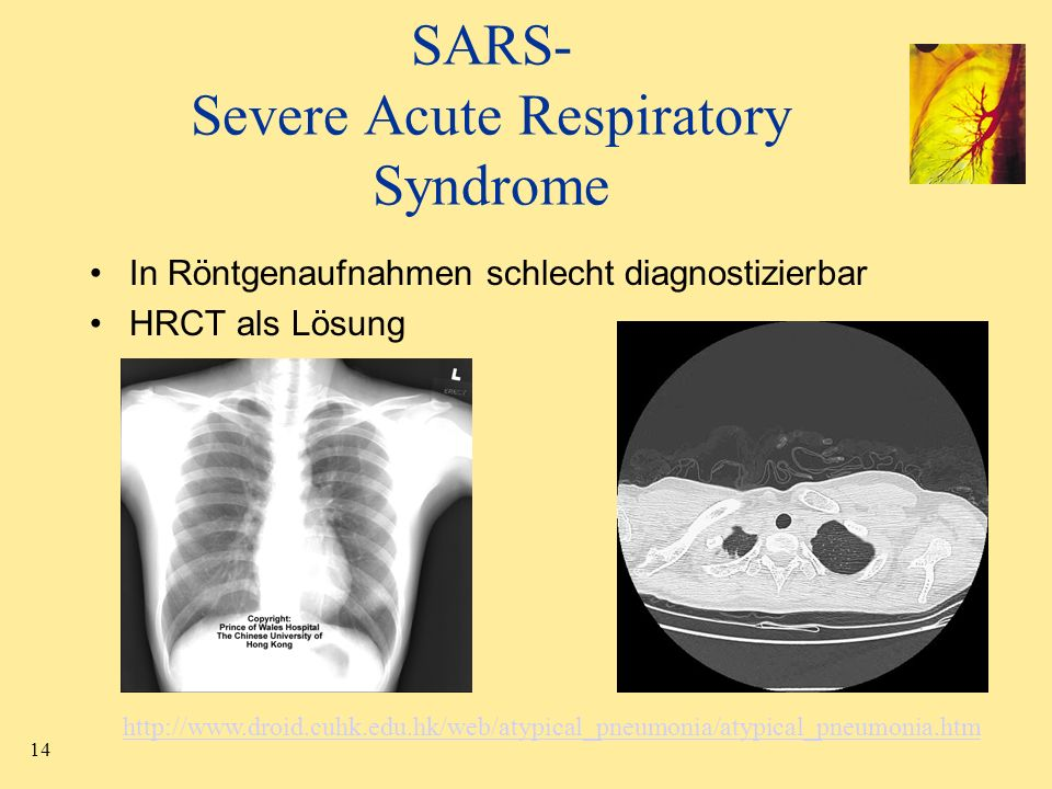 SARS- Severe Acute Respiratory Syndrome