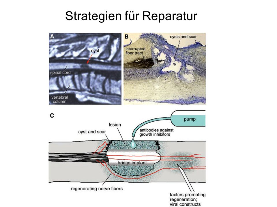 Strategien für Reparatur