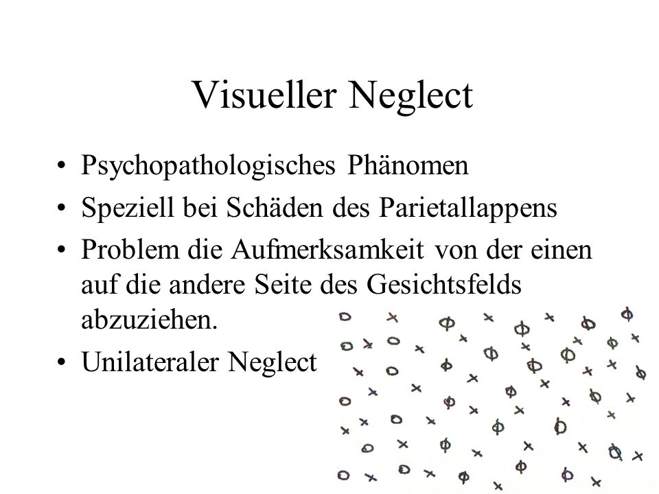 Visueller Neglect Psychopathologisches Phänomen