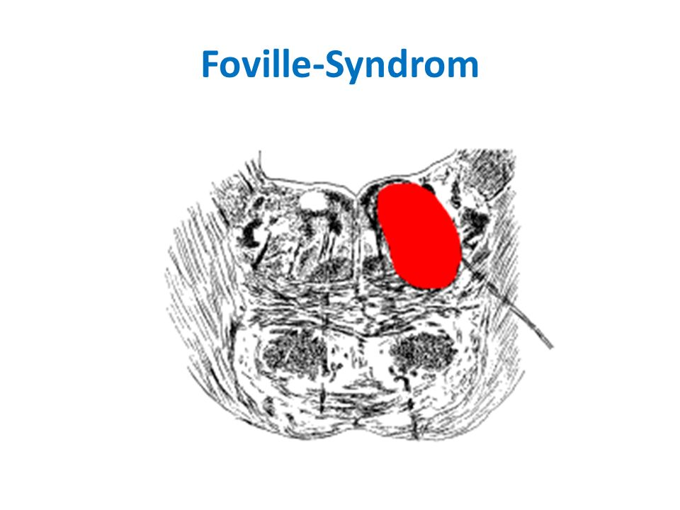 Foville-Syndrom