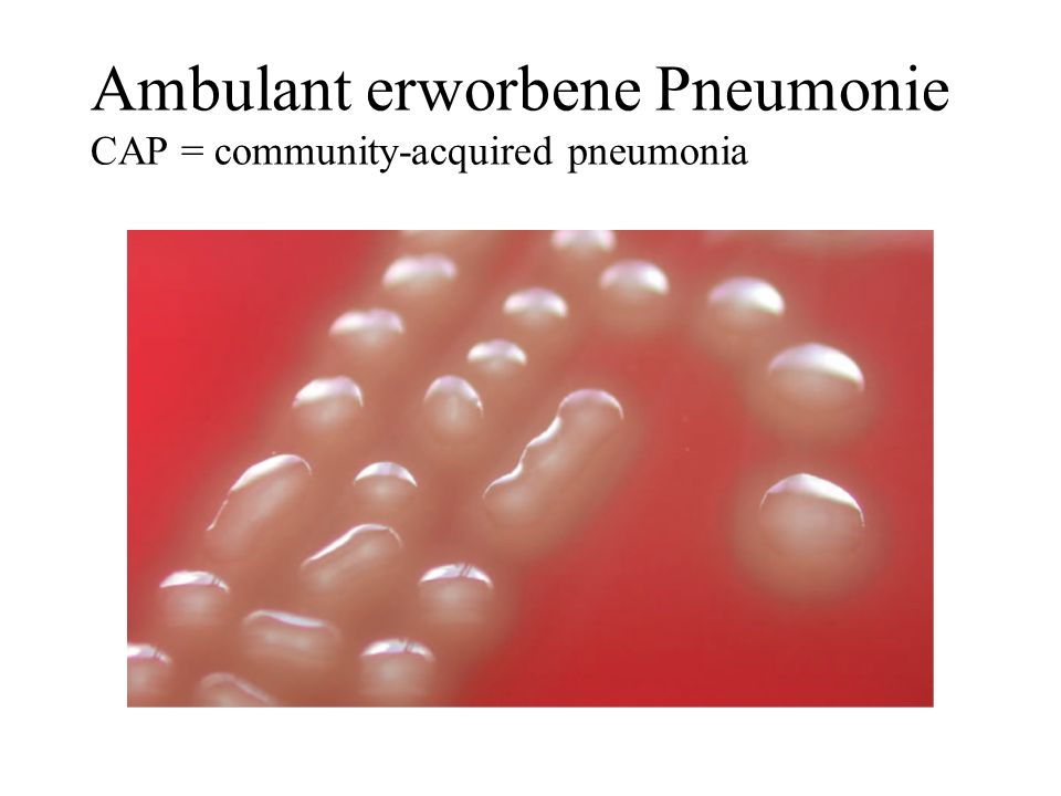 Ambulant erworbene Pneumonie CAP = community-acquired pneumonia