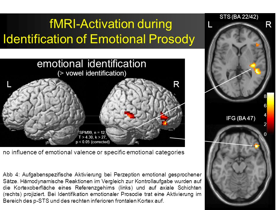 fMRI-Activation during Identification of Emotional Prosody