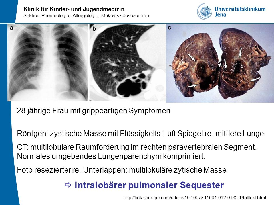  intralobärer pulmonaler Sequester