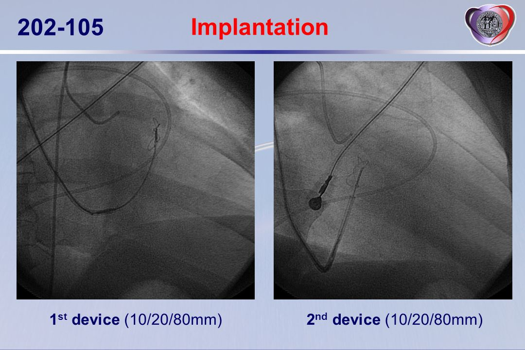 Implantation 1st device (10/20/80mm) 2nd device (10/20/80mm)