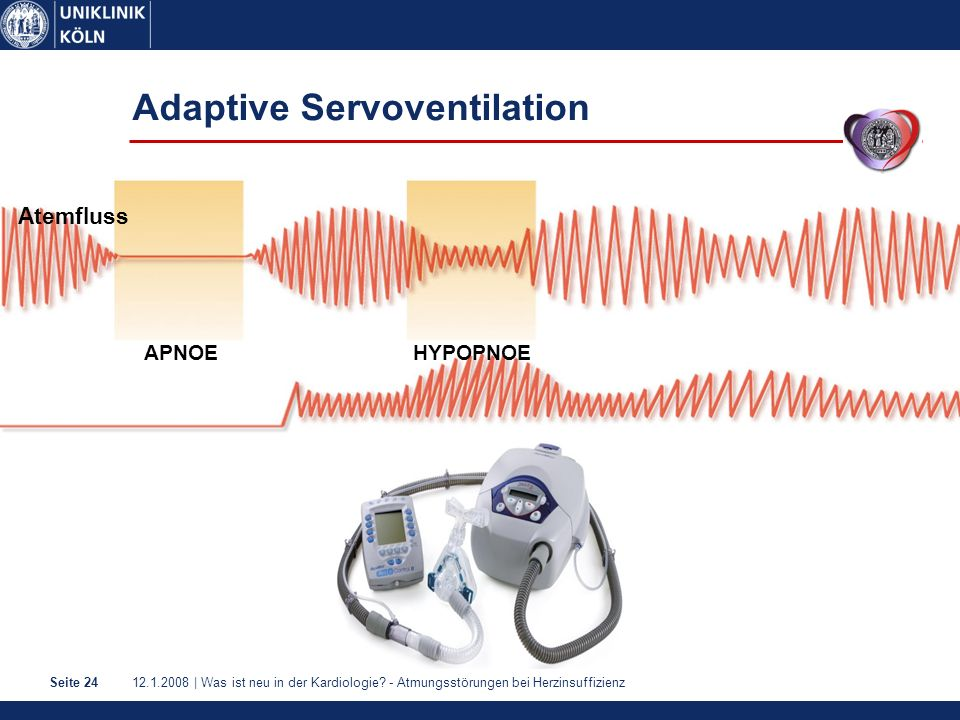Adaptive Servoventilation