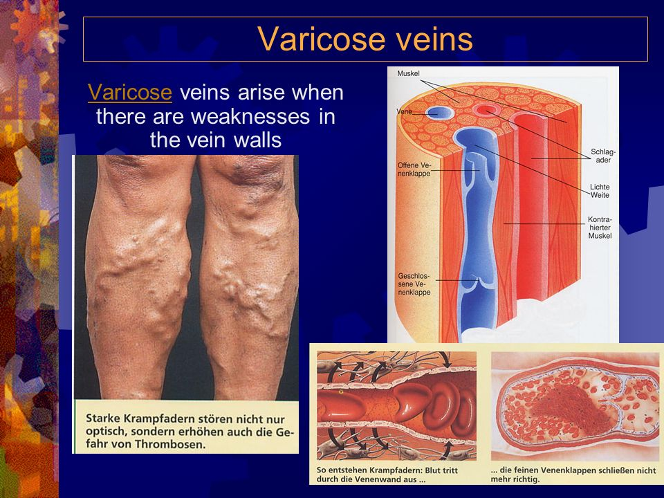 Varicose veins arise when there are weaknesses in the vein walls