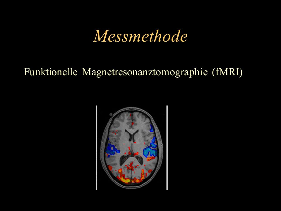 Messmethode Funktionelle Magnetresonanztomographie (fMRI)