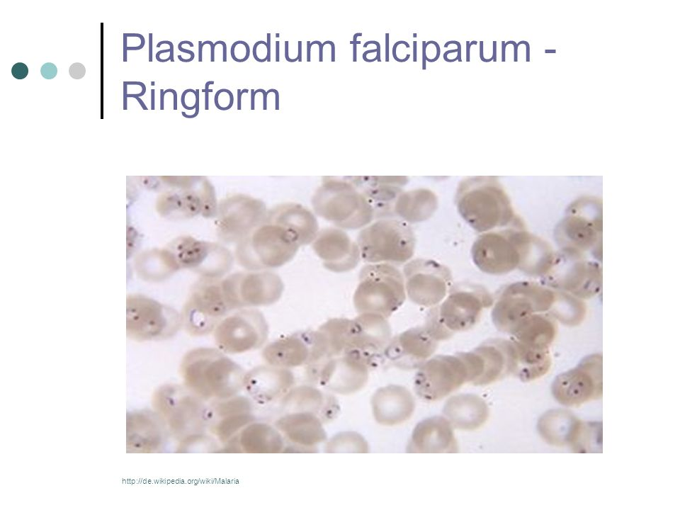 Plasmodium falciparum - Ringform