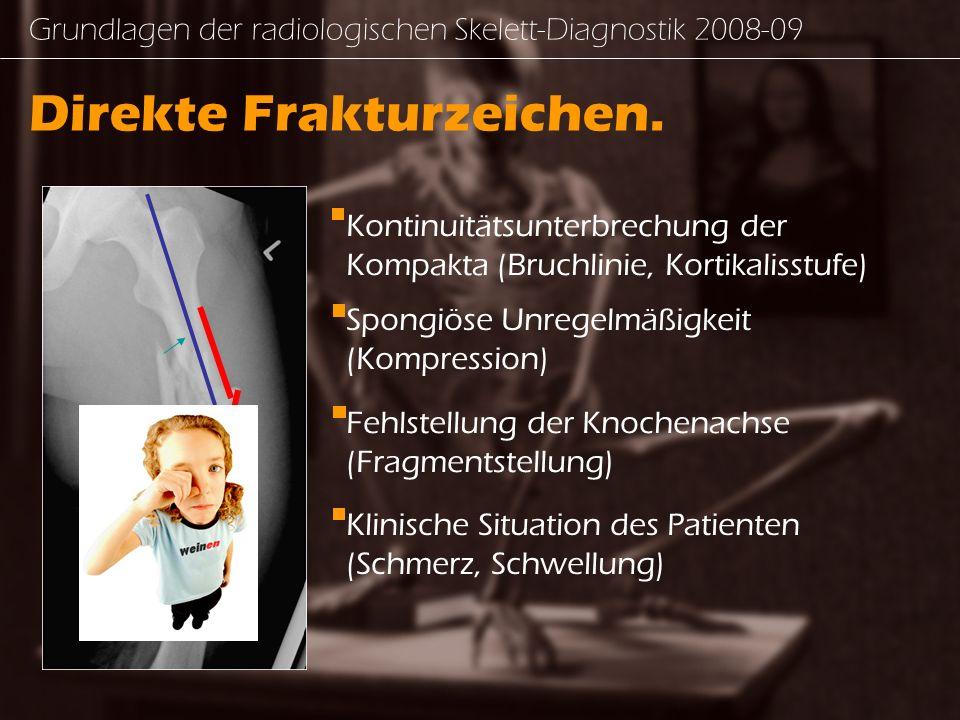Grundlagen der radiologischen Skelett-Diagnostik - ppt video online ...