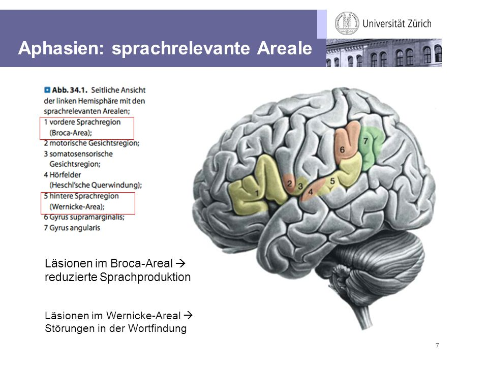 Aphasien: sprachrelevante Areale