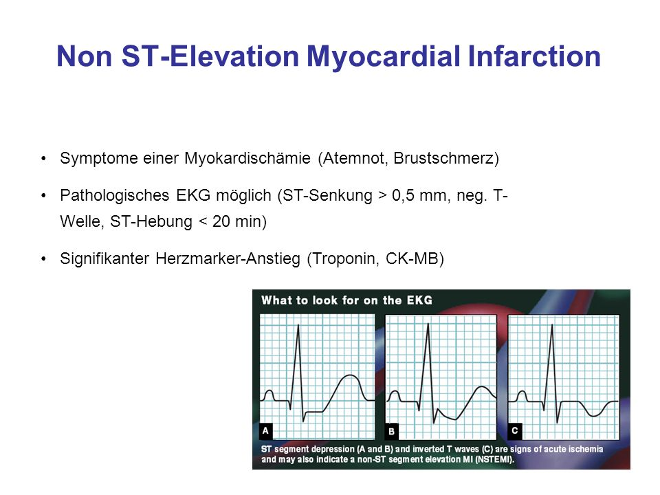 Non ST-Elevation Myocardial Infarction