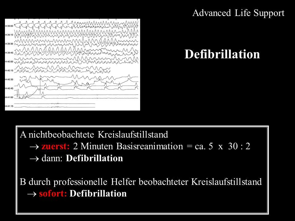 Defibrillation Advanced Life Support