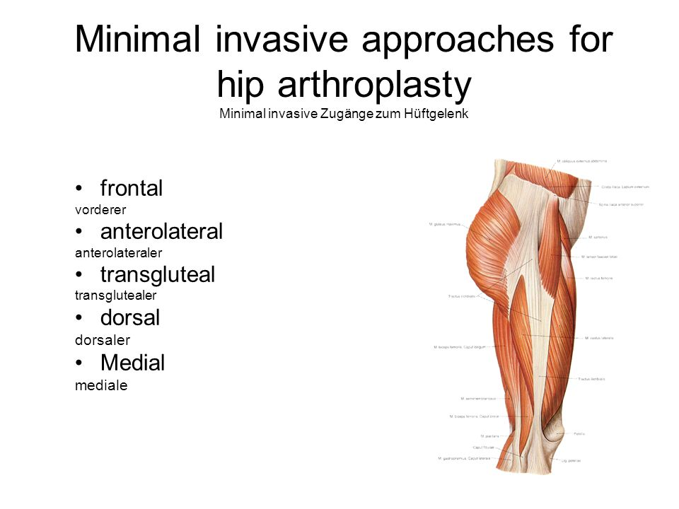 Minimal invasive approaches for hip arthroplasty Minimal invasive Zugänge zum Hüftgelenk