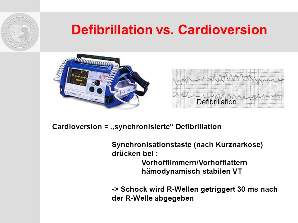 Defibrillation vs. Cardioversion