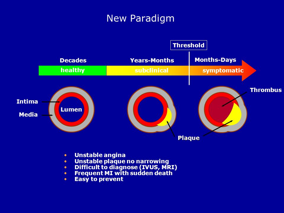 New Paradigm healthy subclinical symptomatic Threshold Decades