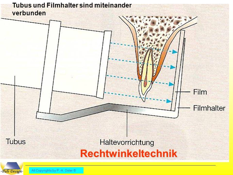 Lernfeld 10 Parodontologie Rontgen 2 All Copyrights By P A Oster